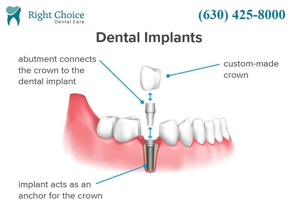 Dental Implant Naperville Il